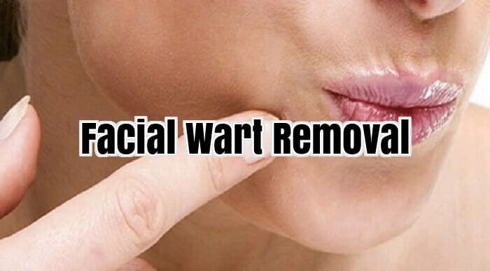 Facial Wart Removal