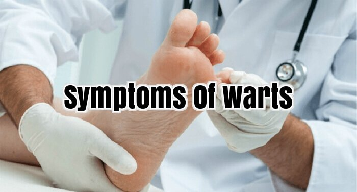 Symptoms Of Warts